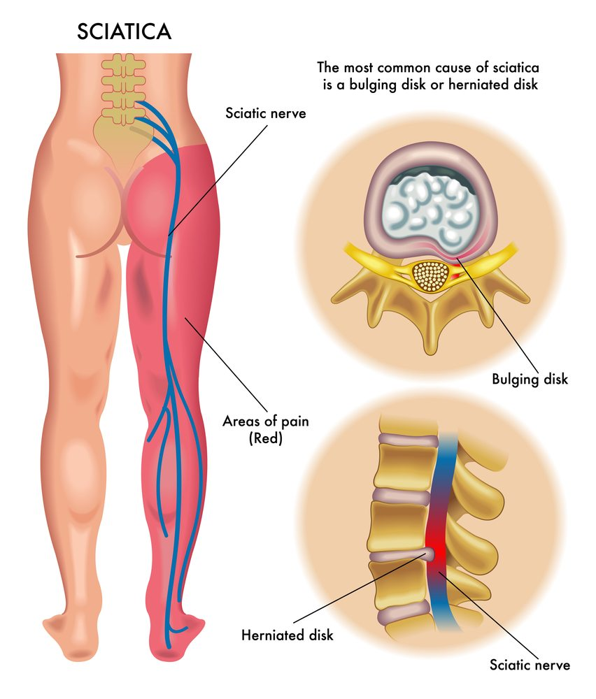 How to relieve nerve pain in back